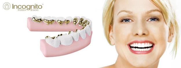 Estetska nevidna ortodontija