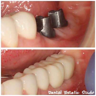 implantati na zobeh