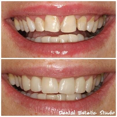 Luske na šestih sprednjih zobeh