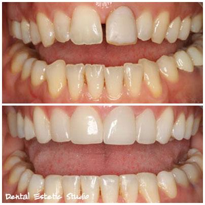 zobna protetika hrvaška