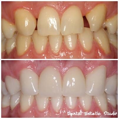 zobne luske_2