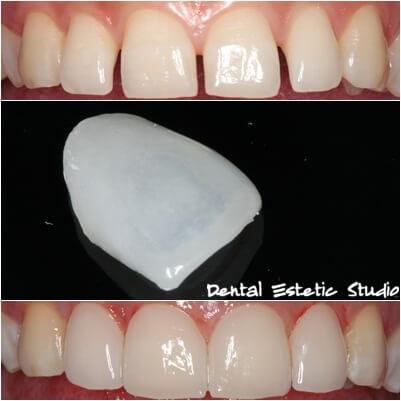 zobni laminati nameščeni na zobe