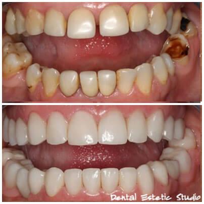 makeover zobne luske