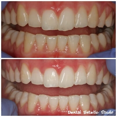 zoom beljenje zob hrvaška