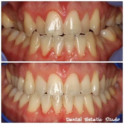 fiksni ortodontski aparat