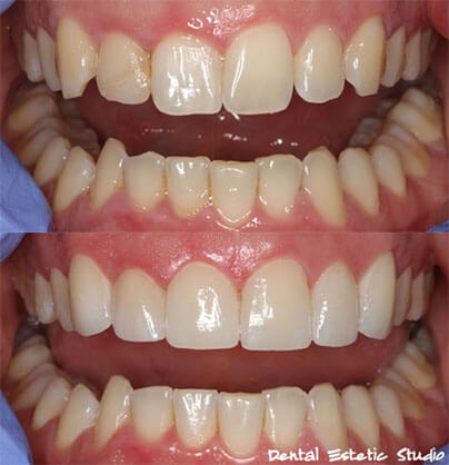 Luske samo na zgornjih šestih sprednjih zobeh