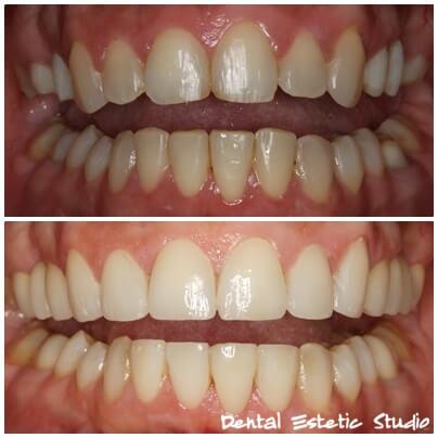zobne luske na šestih sprednjih zobeh