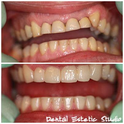 novi zobi