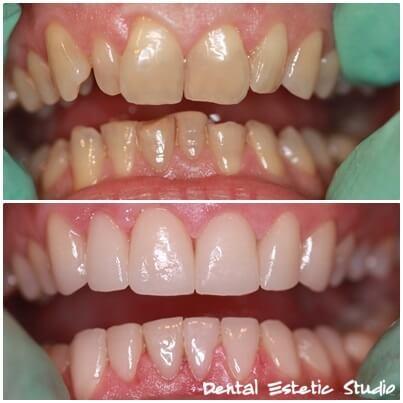 Obnova zob s kombinacijo lusk in nekovinskih prevlek