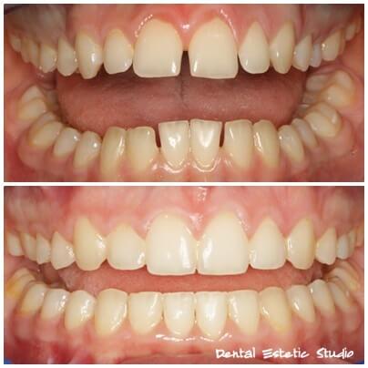 ortodont zagreb hrvaška
