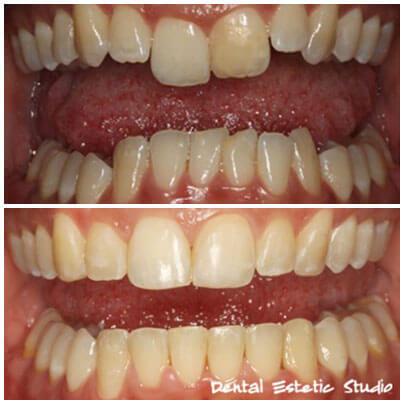 aparat za zobe