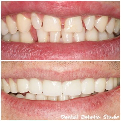 Makeover luskama za zobe