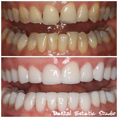 zobne luske 6