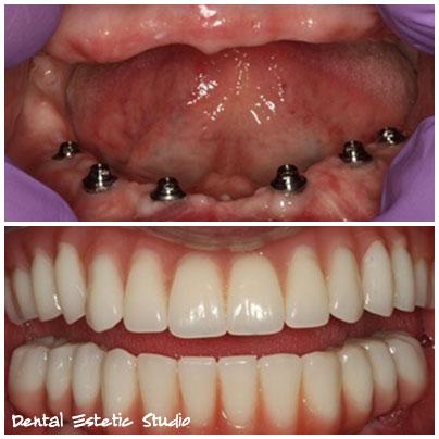 zobna proteza all on 6