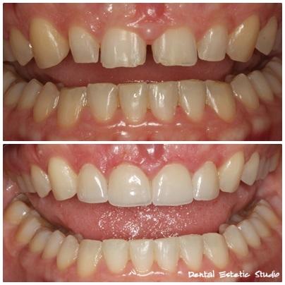 Razmaci, iskrzani bridovi i mali zubi preoblikovani ljuskicama