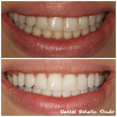 potpuno bijeli zubi