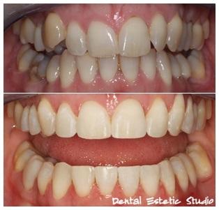 Zubi posloženi fiksnim ortodontskim aparatićem
