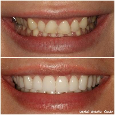 Porcelanaste luske za zobe